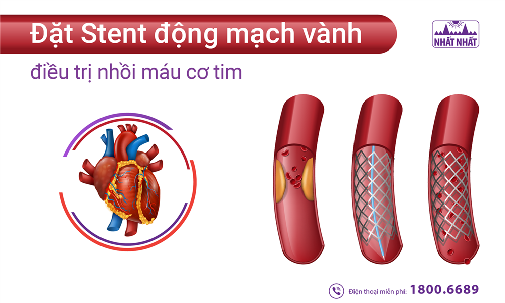 Đặt Stent động mạch vành điều trị nhồi máu cơ tim