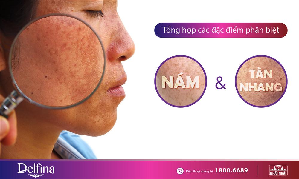 5 Điểm phân biệt rõ rệt giữa da bị nám và tàn nhang