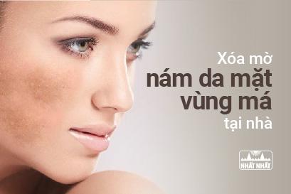 Xóa mờ nám da mặt vùng má tại nhà bằng phương pháp Đông y