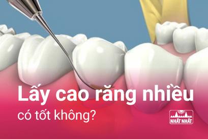 Lấy cao răng nhiều có tốt không và cách chăm sóc răng miệng sau khi lấy cao răng