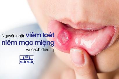 Viêm loét niêm mạc miệng sẽ không còn đáng sợ nếu biết cách!