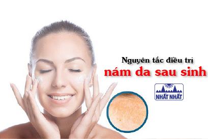Nguyên tắc điều trị nám da sau sinh cho da sáng mịn màng, không tì vết
