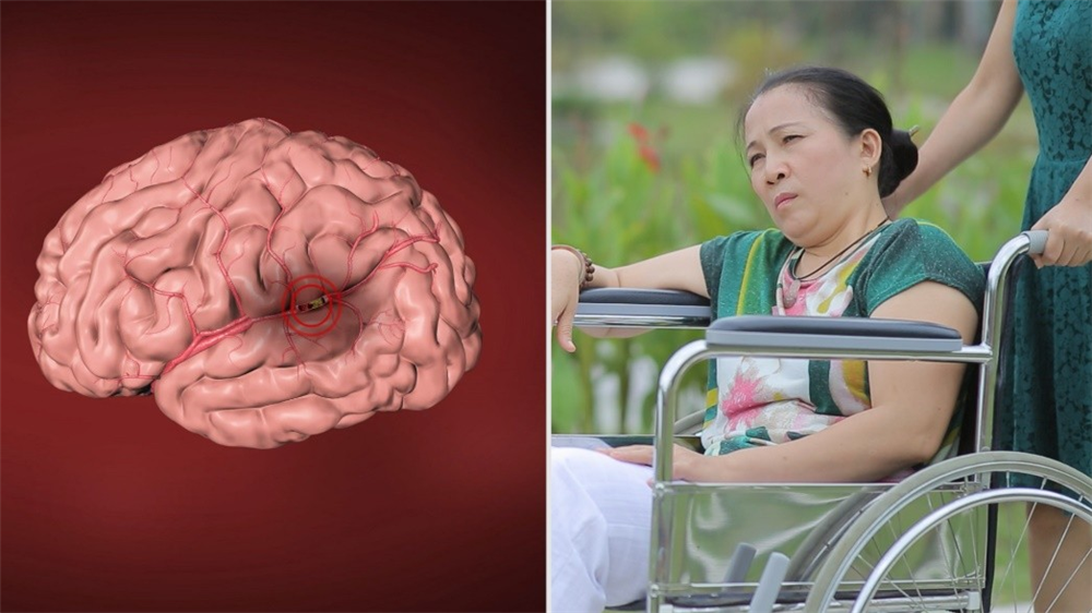 Đặc trị liệt, mắt xếch, méo miệng sau tai biến mạch não bằng thuốc Đông y thế hệ 2