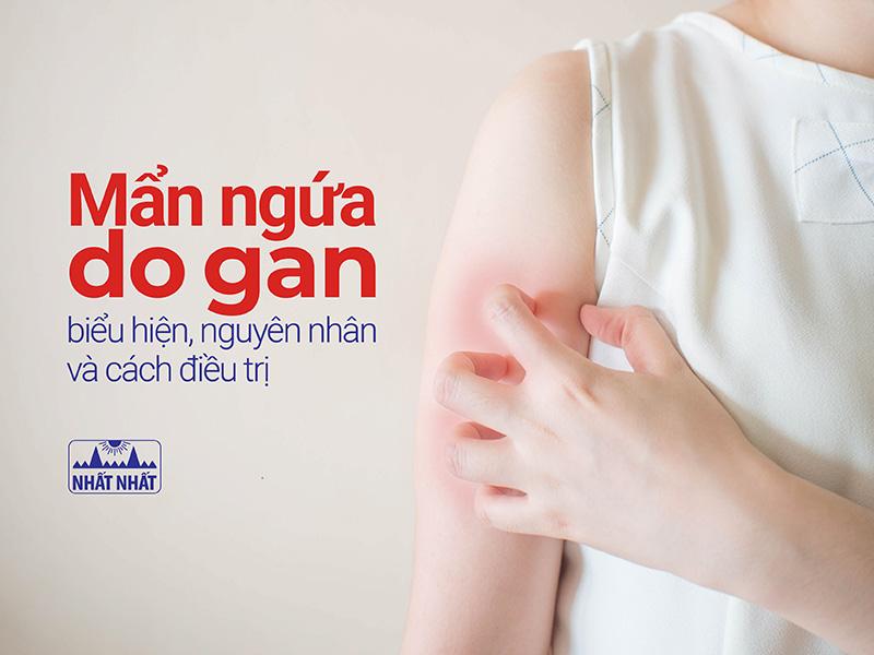 Mẩn ngứa do gan: biểu hiện, nguyên nhân và cách điều trị