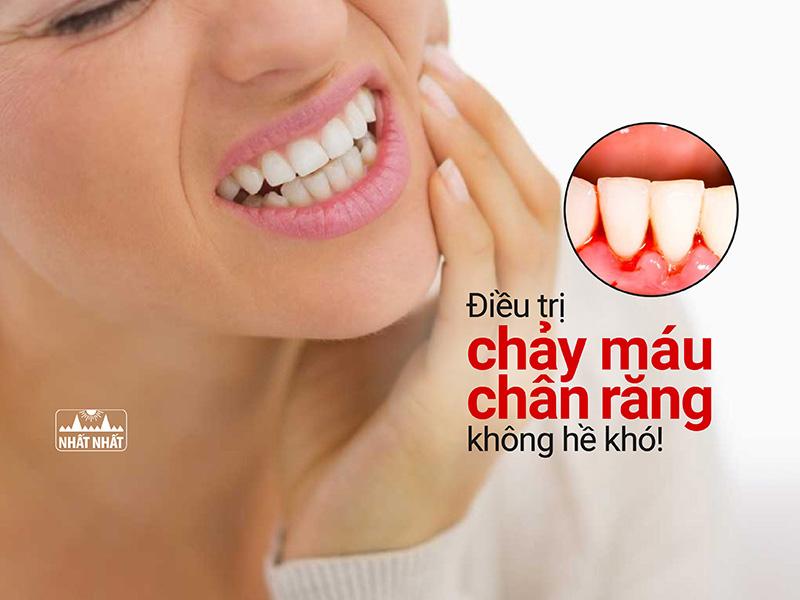 Điều trị chảy máu chân răng không hề khó!