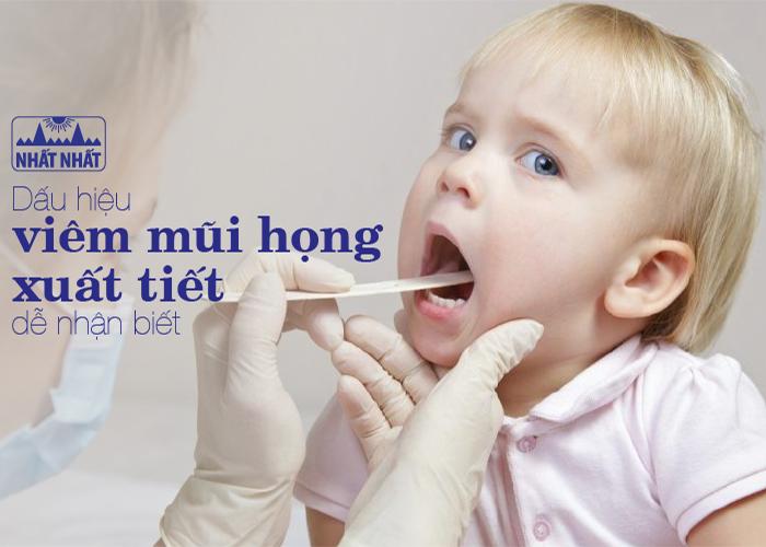 Dấu hiệu viêm mũi họng xuất tiết dễ nhận biết và cách điều trị hiệu quả