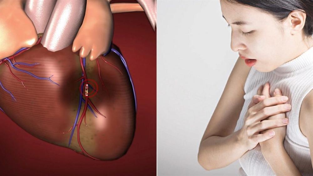 Phòng ngừa nhồi máu cơ tim ở phụ nữ sau mãn kinh bằng thuốc Đông y thế hệ 2