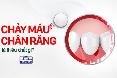 Chảy máu chân răng là thiếu chất gì, điều trị thế nào nhanh khỏi nhất?