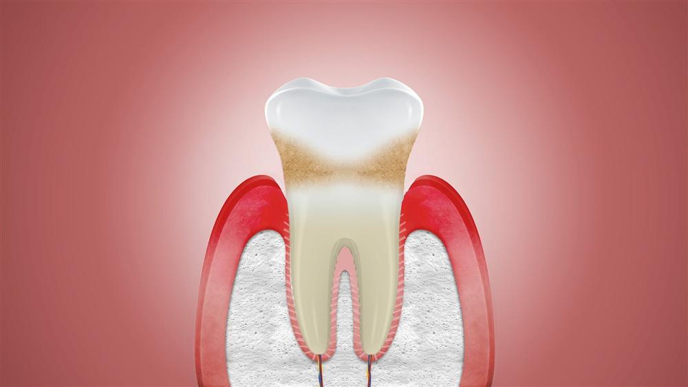 Đừng để tụt lợi nặng gây mất thẩm mỹ và mất răng!