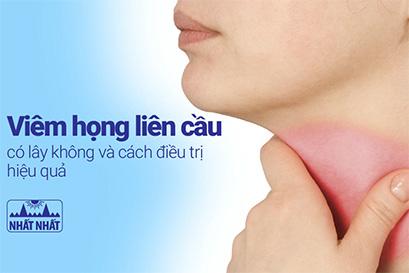 Viêm họng liên cầu có lây không và cách điều trị hiệu quả