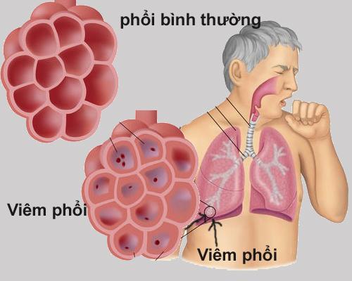Triệu chứng lâm sàng của viêm phổi mắc phải ở cộng đồng