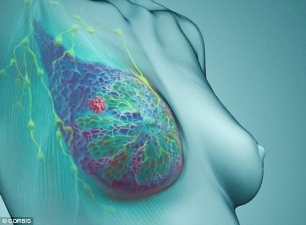 Phát hiện mới về nguyên nhân gây ung thư vú