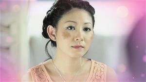 Điều trị triệt để nám má bằng bài thuốc dưỡng sáng hồng da Đông y thế hệ 2, hiệu quả vượt trội