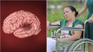Phòng ngừa tai biến mạch não - cái chết không báo trước - bằng thuốc Đông y thế hệ 2