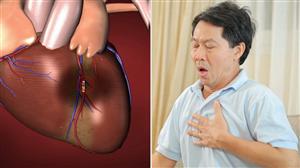 Phòng ngừa và điều trị bệnh mạch vành gây tử vong sau vài phút bằng thuốc Đông y thế hệ 2