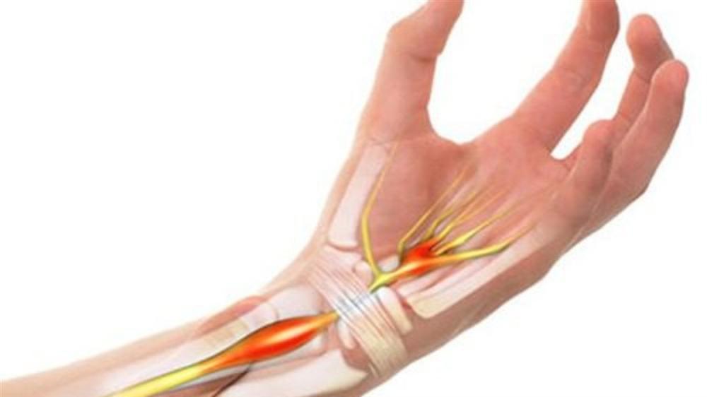 Tổng hợp các nguyên nhân thường gặp khiến bạn bị đau khớp cổ tay