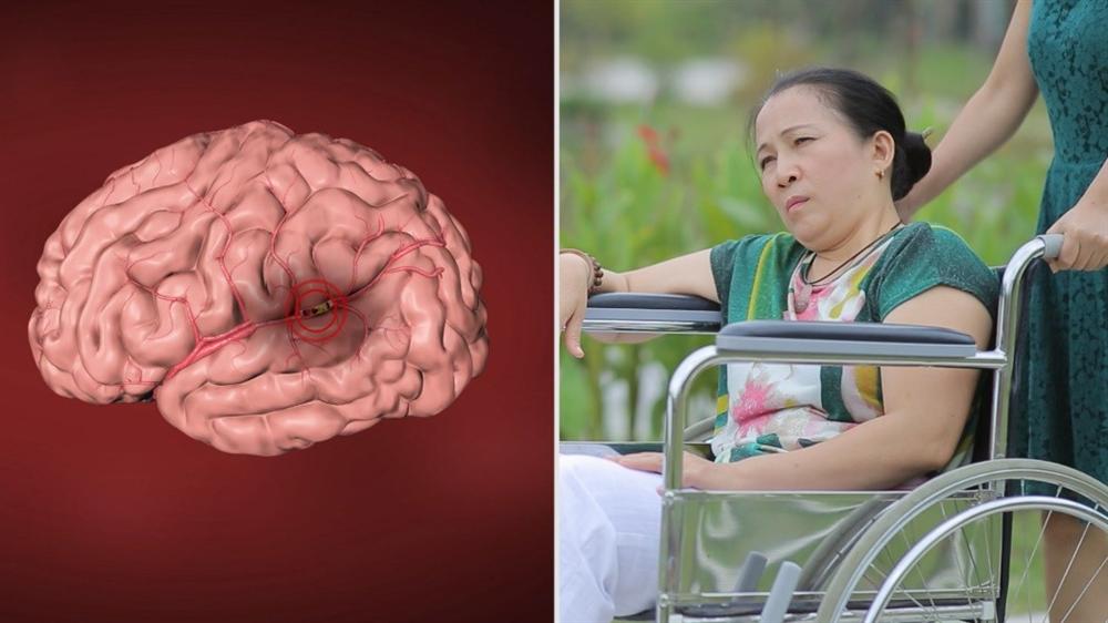 Ngăn ngừa tai biến mạch não tái phát  bằng thuốc Đông y thế hệ 2