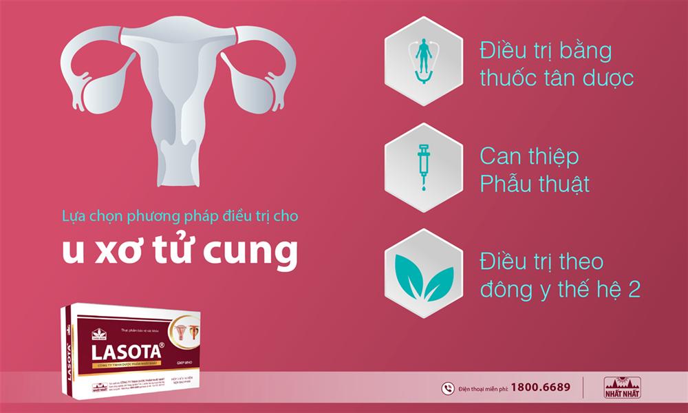 Lựa chọn phương pháp điều trị u xơ tử cung phù hợp