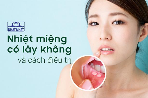 Nhiệt miệng có lây không và cách nào giúp vết loét nhanh lành?