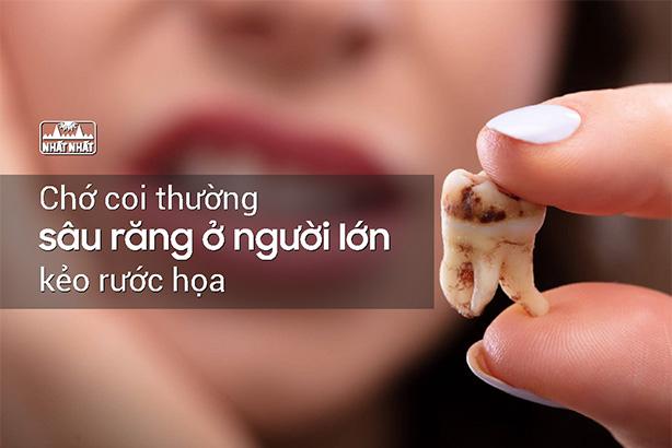 Chớ coi thường sâu răng ở người lớn kẻo rước họa!