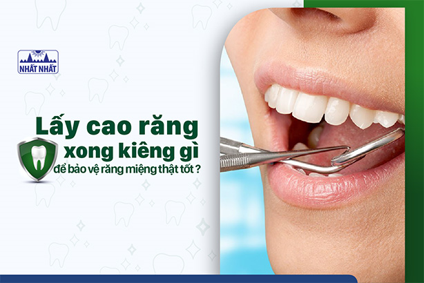 Lấy cao răng xong kiêng gì để bảo vệ răng miệng thật tốt?