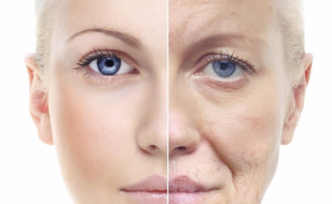 Lão hóa da là dấu hiệu dễ nhận biết bằng mắt thường