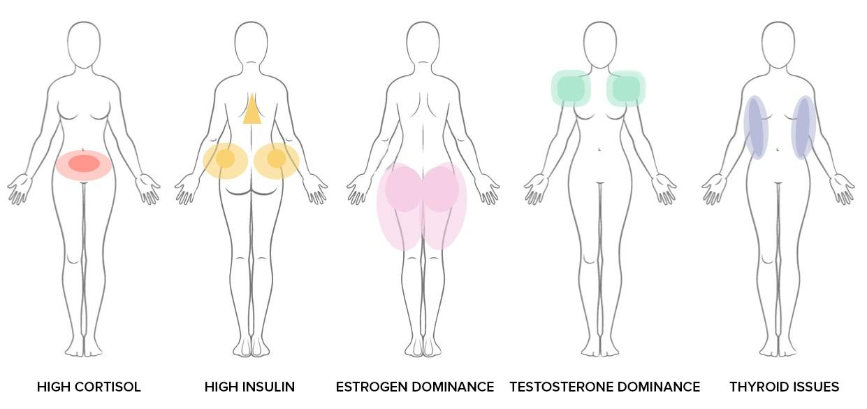 Mỡ phân bố không đều trên cơ thể